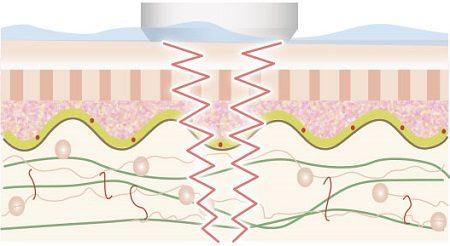 EMS(電気的筋肉刺激)